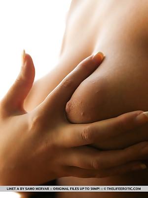 Swollen Nipples